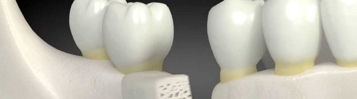 surrey dental bone graft