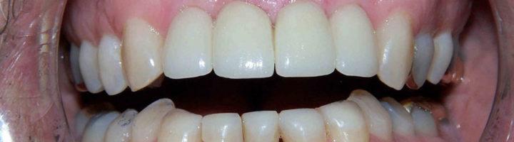 surrey dental bridge