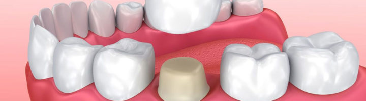 surrey dental crowns